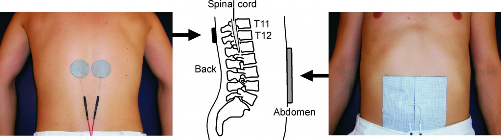 Placement of electrodes (pictures) and schematic of relation to spinal cord